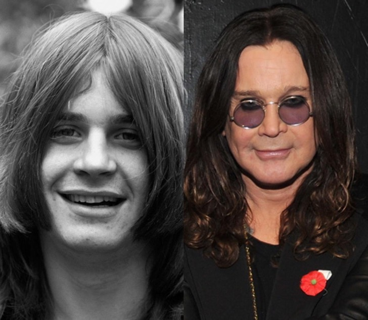 ozzy-osbourne-before-and-after-face-job