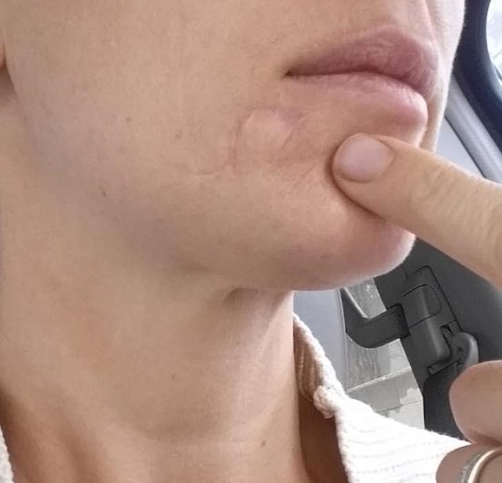 enfermedad de la piel bultos